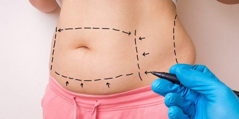 abdominoplastia-e-gravidez-dra-iara-garcia